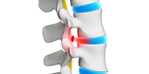 Mitől fáj a gerincsérv?