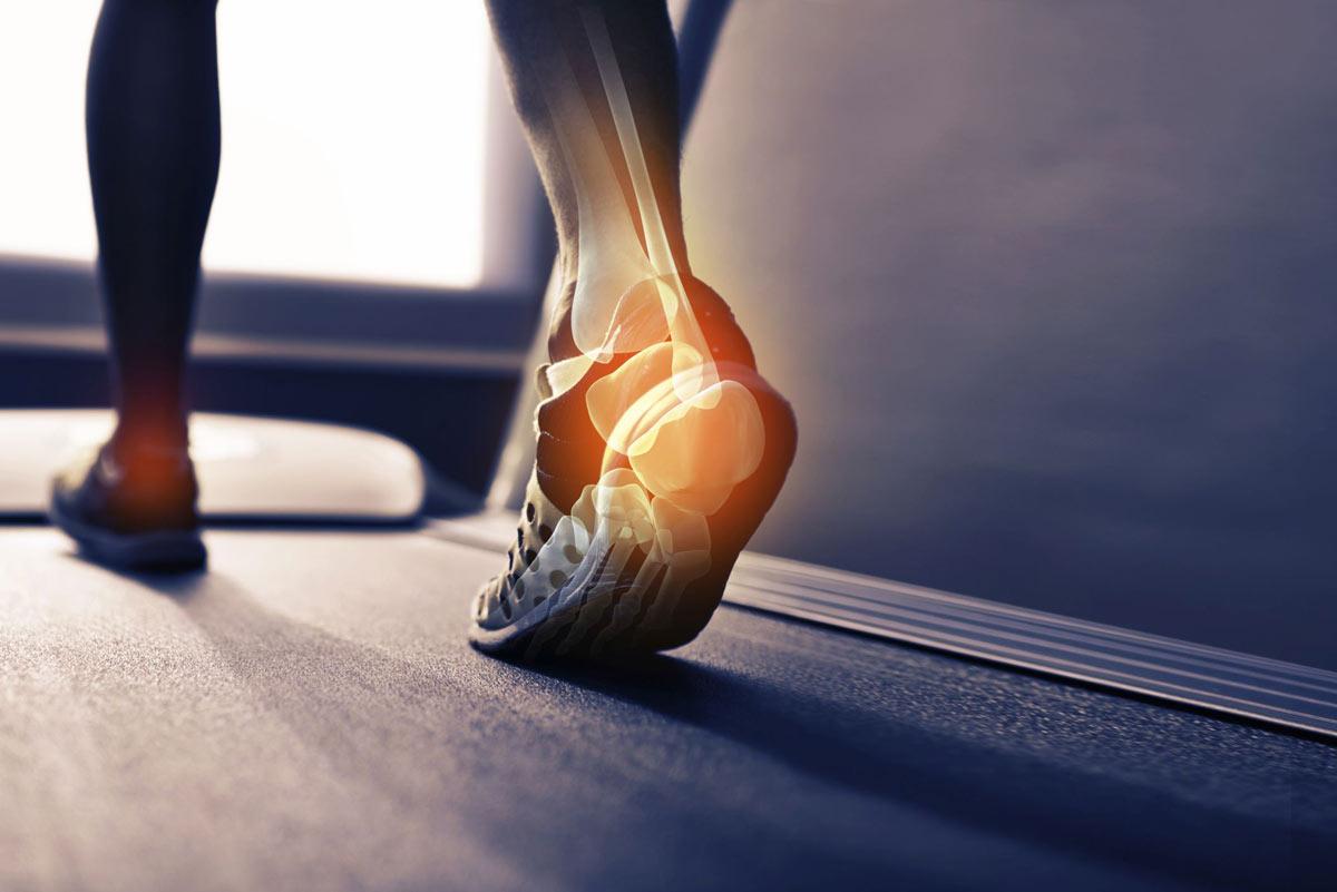 A boka stabilitásának megsegítése gyógytornával